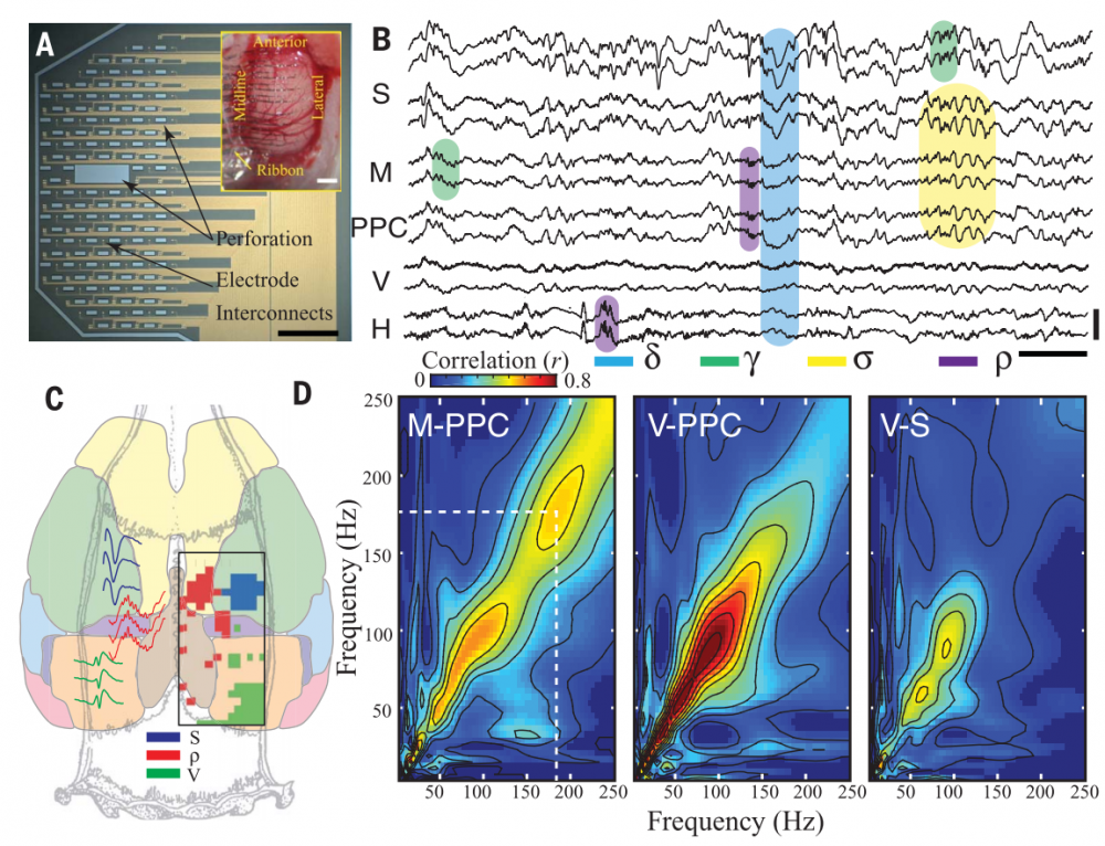 Learning-enhanced coupling between ripple oscillations in association cortices and hippocampus